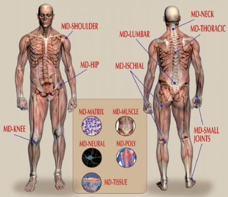Guna MD - kompletný rad prípravkov na liečbu bolesti pohybového a podporného aparátu.